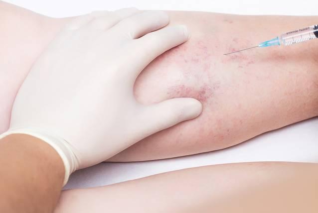 Schmerzfreie Besenreiser-Behandlung / Besenreiser entfernen